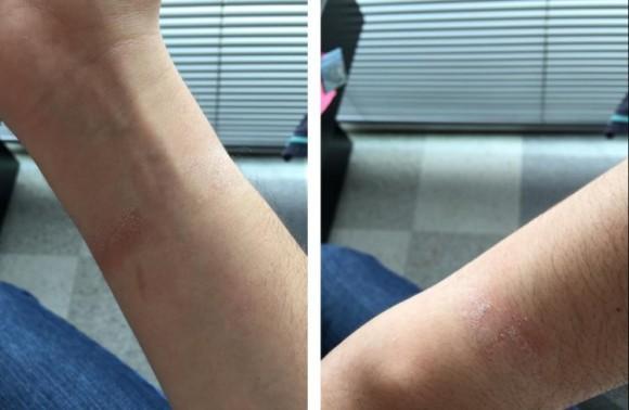 Apple Watch アレルギー 炎症
