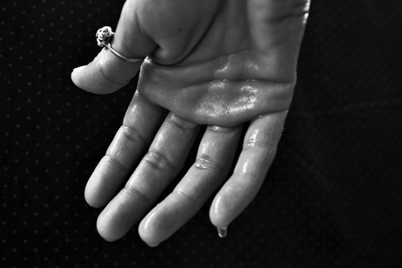 https://pixabay.com/en/hand-hyperhidrosis-sweating-1502242/