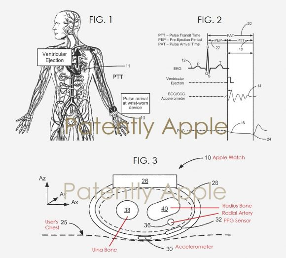 apple watch 血圧 特許