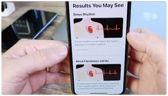 Apple Watch Series 4 心電図(ECG) YouTube iDeviceHelp