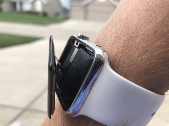 apple-watch-swollen-800x600