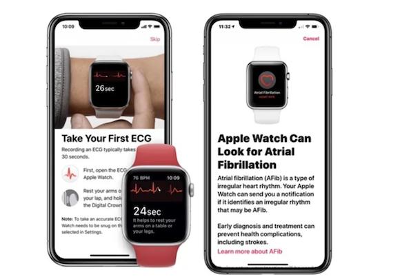 Apple Watch AFib