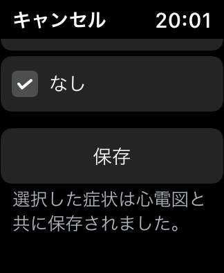 iPhone Apple Watch 心電図 アプリ